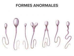Spermatozoides de formes anormales