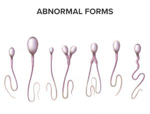 Spermatozoa in abnormal forms