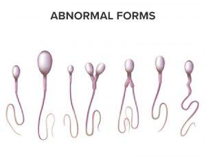 Spermatozoa in abnormal forms